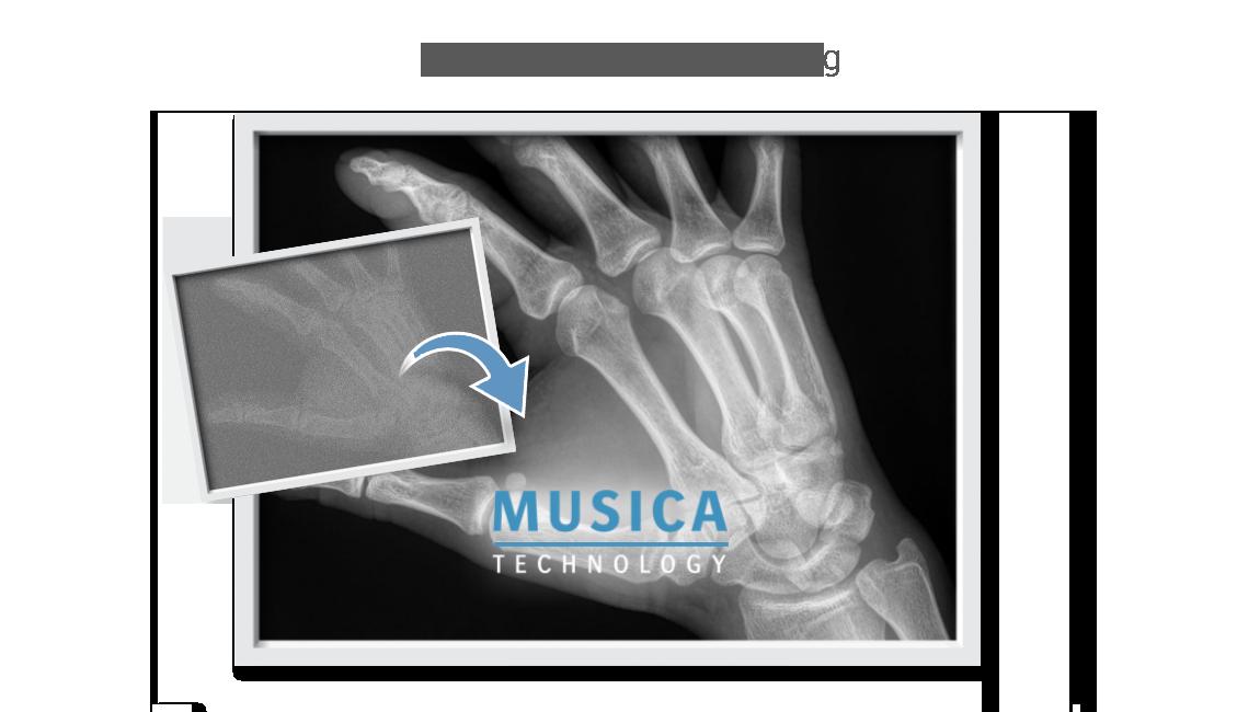 MUSICA image processing