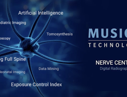 MUSICA – Nerve Center of Digital Radiography