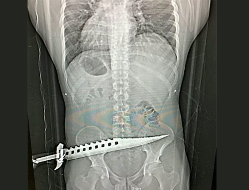 Shocking X-ray of a zombie knife