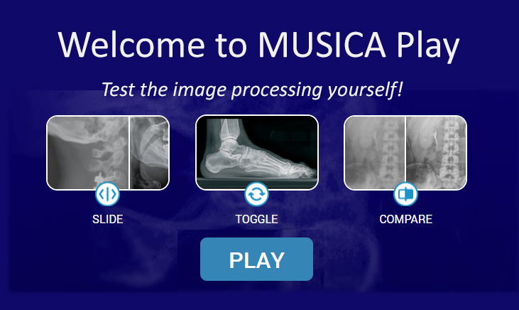 Digital Radiography: DR & CR powered by MUSICA