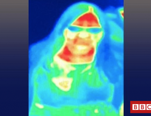 Breast cancer detected by thermal imaging scan in Edinburgh