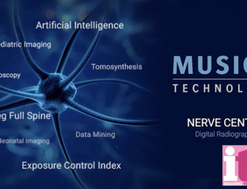 Agfa Transforms Digital Radiography Through Its MUSICA Digital Nerve Center