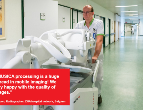 #ECR2020: Smooth operator: unparalleled maneuverability in mobile imaging